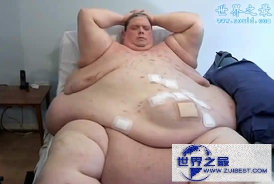 【图】世界上最胖的男人,最高体重达1194斤