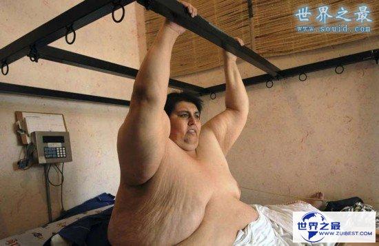 【图】世界上最胖的男人曼努埃尔·乌里韦,重达1194斤