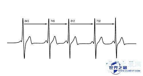【图】失常的血压范围,老年人如何预防高血压,多发