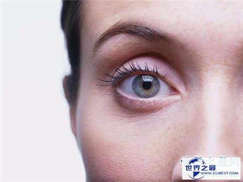 【图】眼睛红血丝是怎样回事 快速消弭红血丝方法