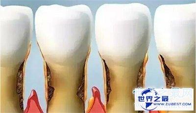 【图】梦见牙齿松动原来象征着这些 太神奇了