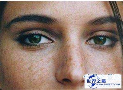 【图】看了黄褐斑图 你还不好好颐养本人的皮肤吗