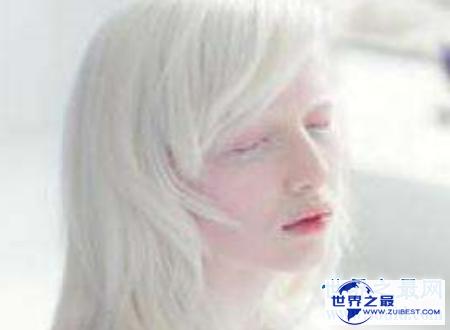 【图】白化病能活多久是很多人心中的纳闷关于白化病
