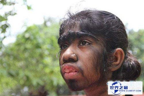 【图】怪病都有哪些呢 曾有女孩皮肤始终长金属丝