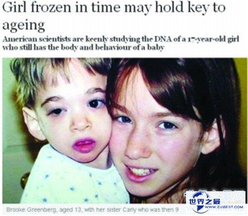 【图】不老症并不是长生不老 美国女童17岁仍是女婴