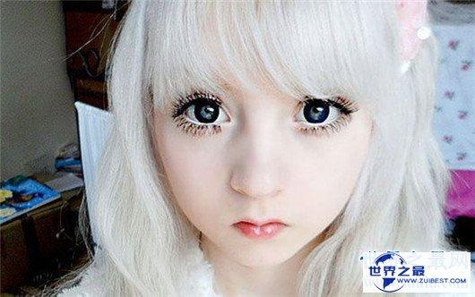 【图】15岁白化病萝莉面貌受宅男追捧,被奉为真人版充