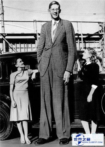 【图】罗伯特·沃德洛身高靠近三米 年仅22岁睡梦中去世