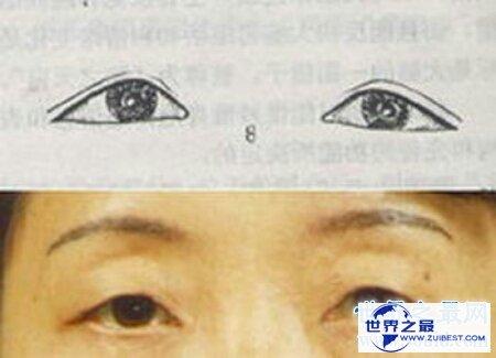 【图】一种常见的生理现象三角眼 咱们该怎样矫正