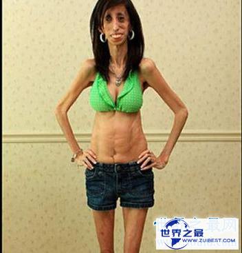 【图】世界上最瘦的人 体重竟犹如一个重生婴儿