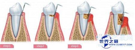 【图】牙龈炎图片 快出去对比一下你有没有牙龈炎