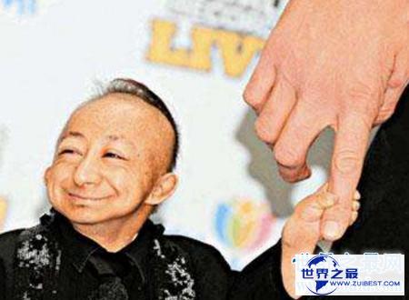 【图】世界上最矮的人身高矮但有着暖和人心的浅笑