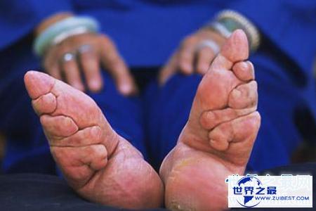 【图】裹脚是一种可怕的传统风俗 它的寓意是如此的美