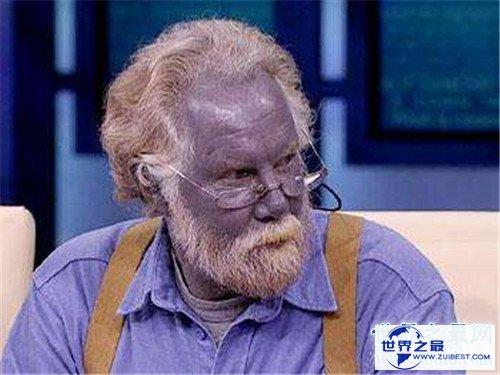 【图】蓝色人种切实存在 皮肤变成蓝色竟然和血液无关
