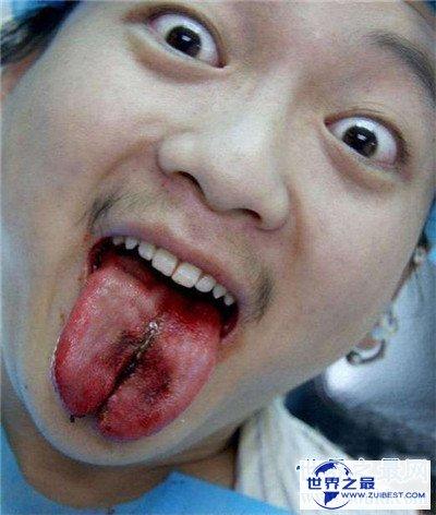 【图】分舌手术的危害及作用 为什么有人会青睐分舌手