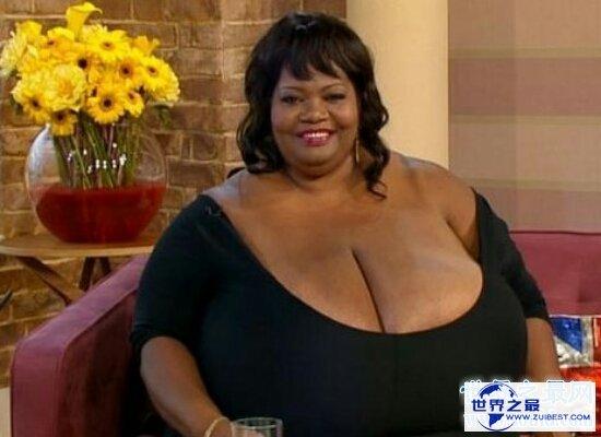【图】世界上最大的胸 分量20公斤 大到让人们疑心人生