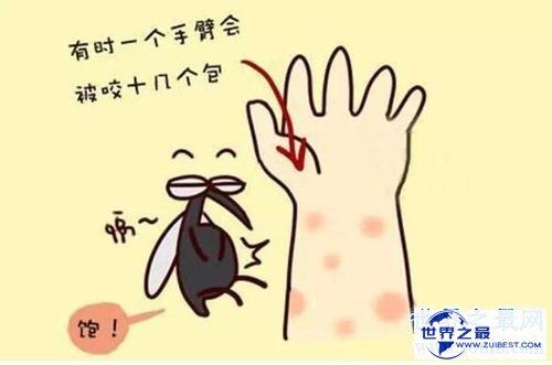 【图】蚊子青睐叮咬什么血型的人 有这五种特点的人要