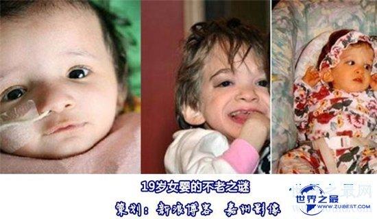【图】不老女婴存活20年 模样不变依然6个月婴儿大小