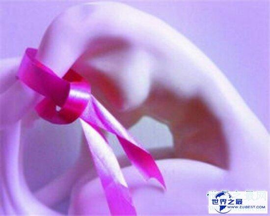 【图】看懂早期乳腺癌图片 早知道早治疗