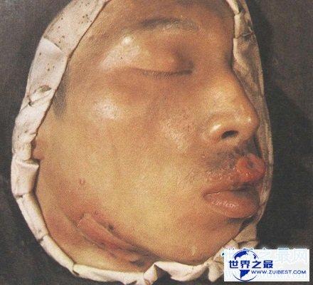【图】快看看这些梅毒图片 这种性病没有症状长期潜伏