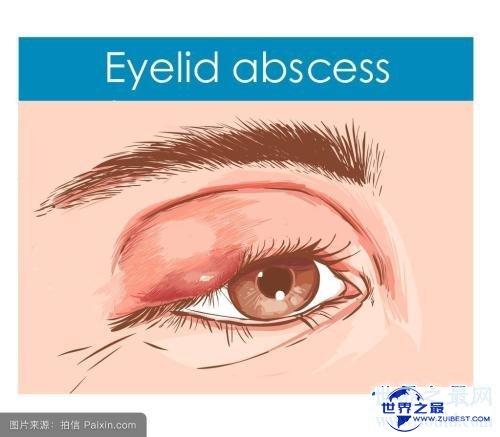 【图】眼睛长了麦粒肿图片 麦粒肿的缘由以及如何处理