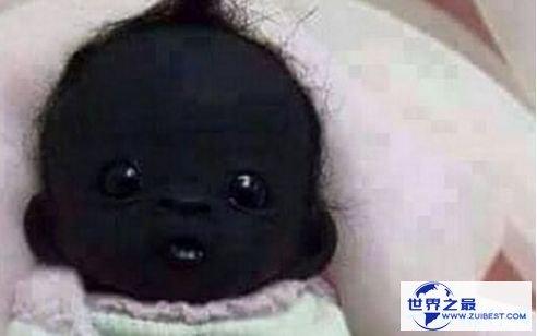 世界上最黑的人,南非婴儿黑出了新高度