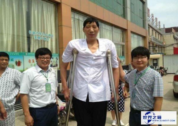 中国最高的人徐福海 仅26岁就高达2.43米