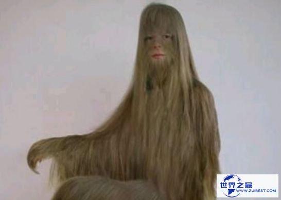 """世界上体毛最长的人 科学家称其为""""人类返祖现象"""""""