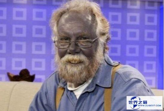 世界上最奇怪的民族 皮肤血液均为蓝色的奥坎基查尔族人
