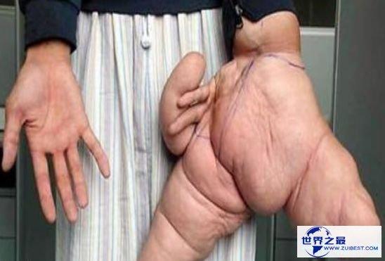 清点世界最大 吉尼斯记载中最大的脚竟长达40厘米