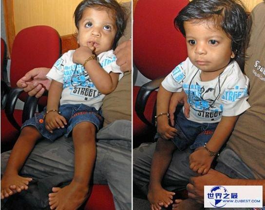 清点世界最多 印度小男孩竟有14个手指和20个脚趾
