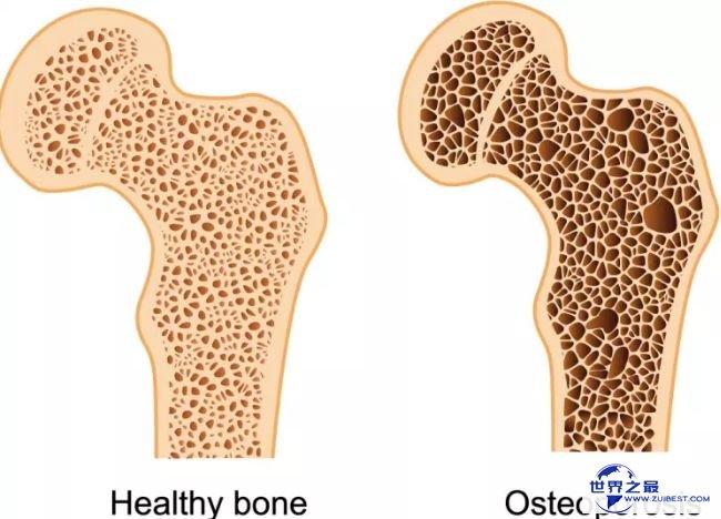 骨质蓬松症