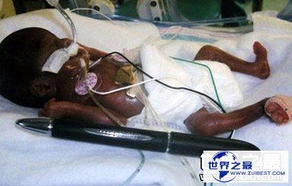 【图】世界上最小的婴儿
