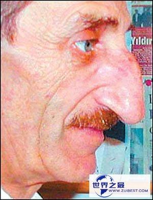 【图】世界上最大的鼻子