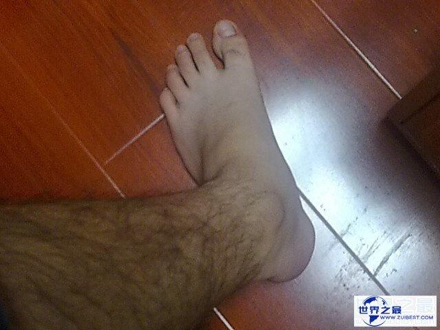 【图】世界上最长的腿毛